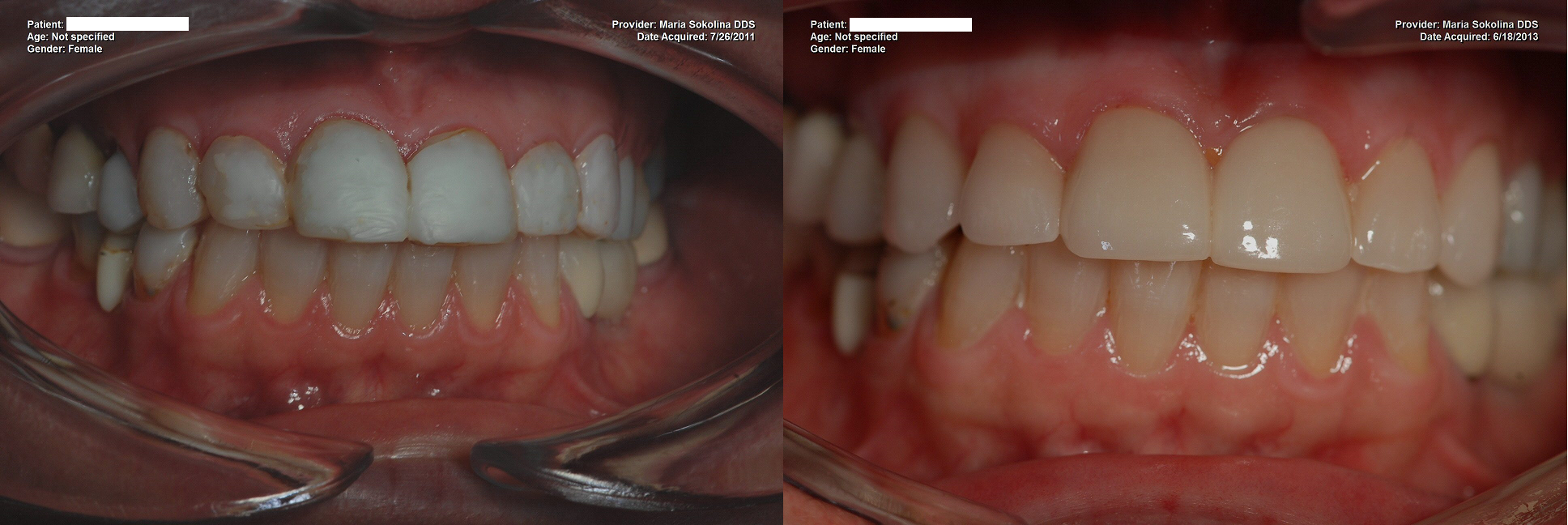 Replacement of composite bonding with porcelain veneers