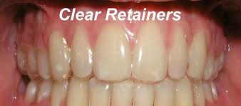Clear retainers photo