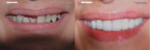 a patient's full arch dental implants restoration, before and after their treatment