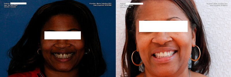 a patient's teeth before and after their professional teeth whitening