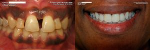Patient full mouth restoration before and after photo