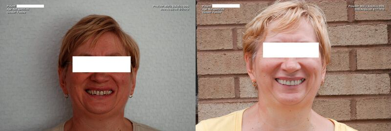 a patient's smile before and after her full mouth restoration