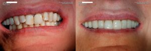 a patient's teeth before and after having a full mouth restoration