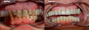 a patient's teeth before and after full mouth restoration