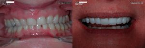 a patient's teeth before and after their porcelain veneer procedure