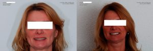 Patient teeth whitening before and after photo