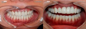 a patient's teeth before and after dental crowns and veneers
