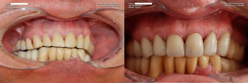 a patient's teeth before and after a dental cleaning