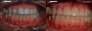 a patient's teeth before and after replacing the composite bonding with dental veneers