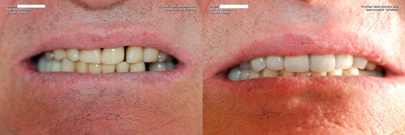 a patient's teeth before and after their full mouth restoration