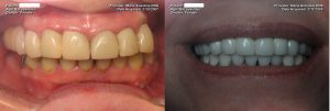 a patient's teeth before and after their full mouth dental implants restoration