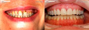 a patient's teeth before and after an oral exam and dental cleaning