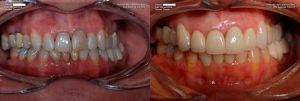 a patient's teeth before and after their tooth-colored fillings