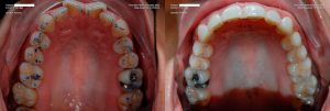 a patient's teeth before and after a full mouth restoration