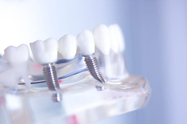 a dental implant bridge placed in a clear display model