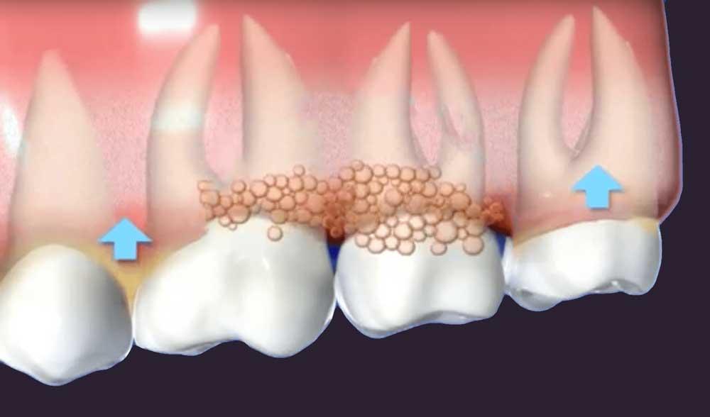 a diagram depicting gums affected by gum disease